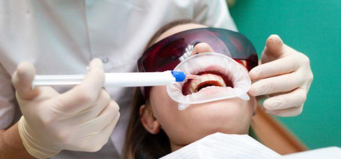 In-Office-Bleaching – Professionelles Bleaching beim Zahnarzt