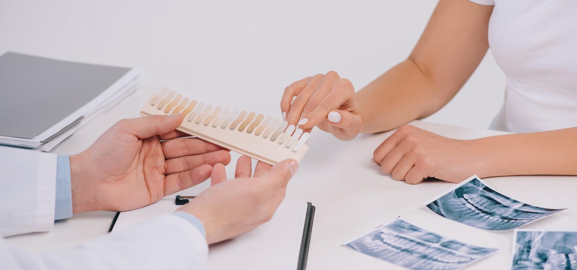 Wie man sich auf ein Zahnbleaching zu Hause vorbereitet